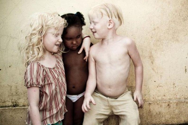 Белые дети в бразильской семье (4 фото) .